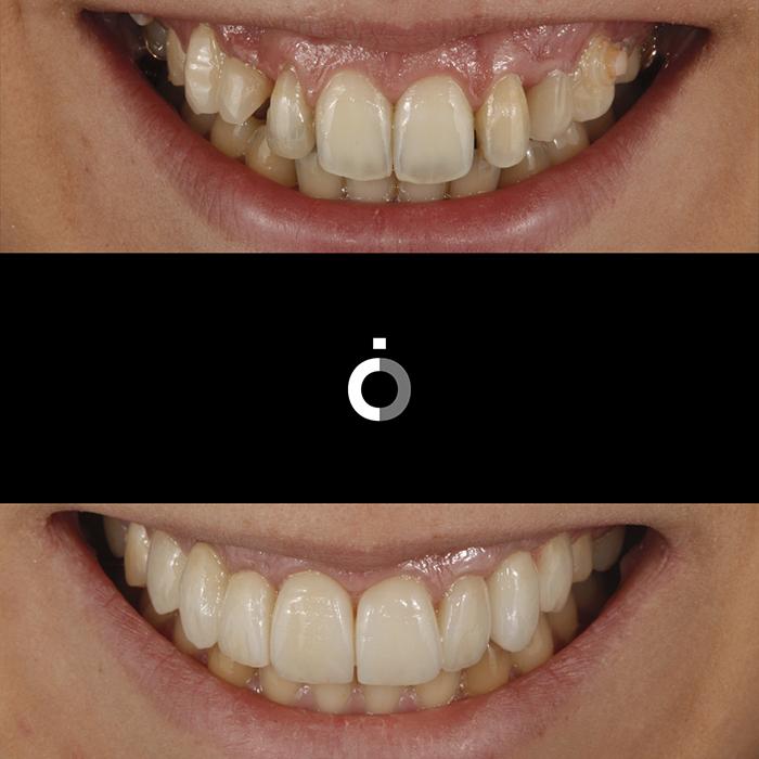 Ortodoncia2 despues