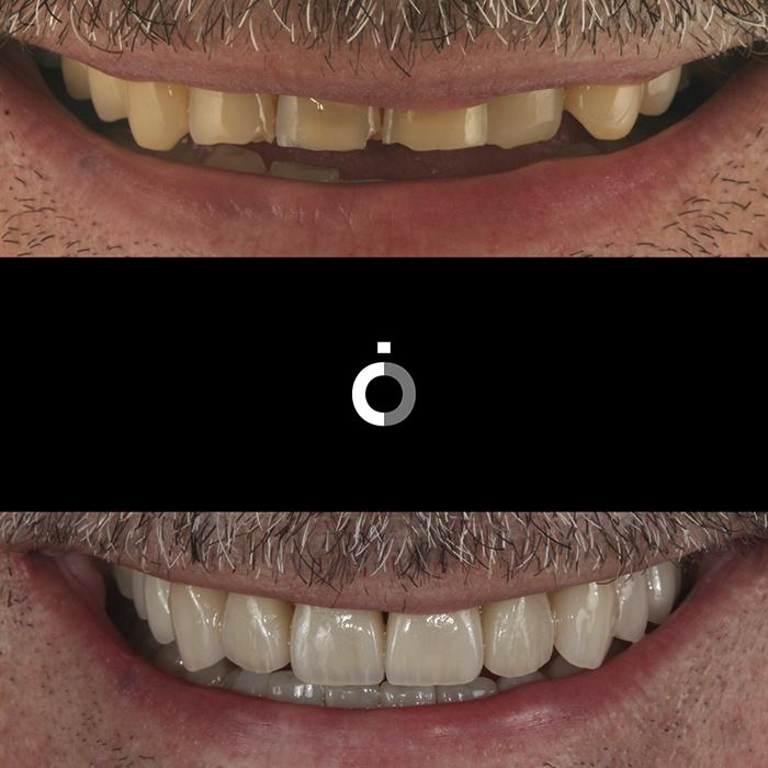 Ortodoncia3 despues