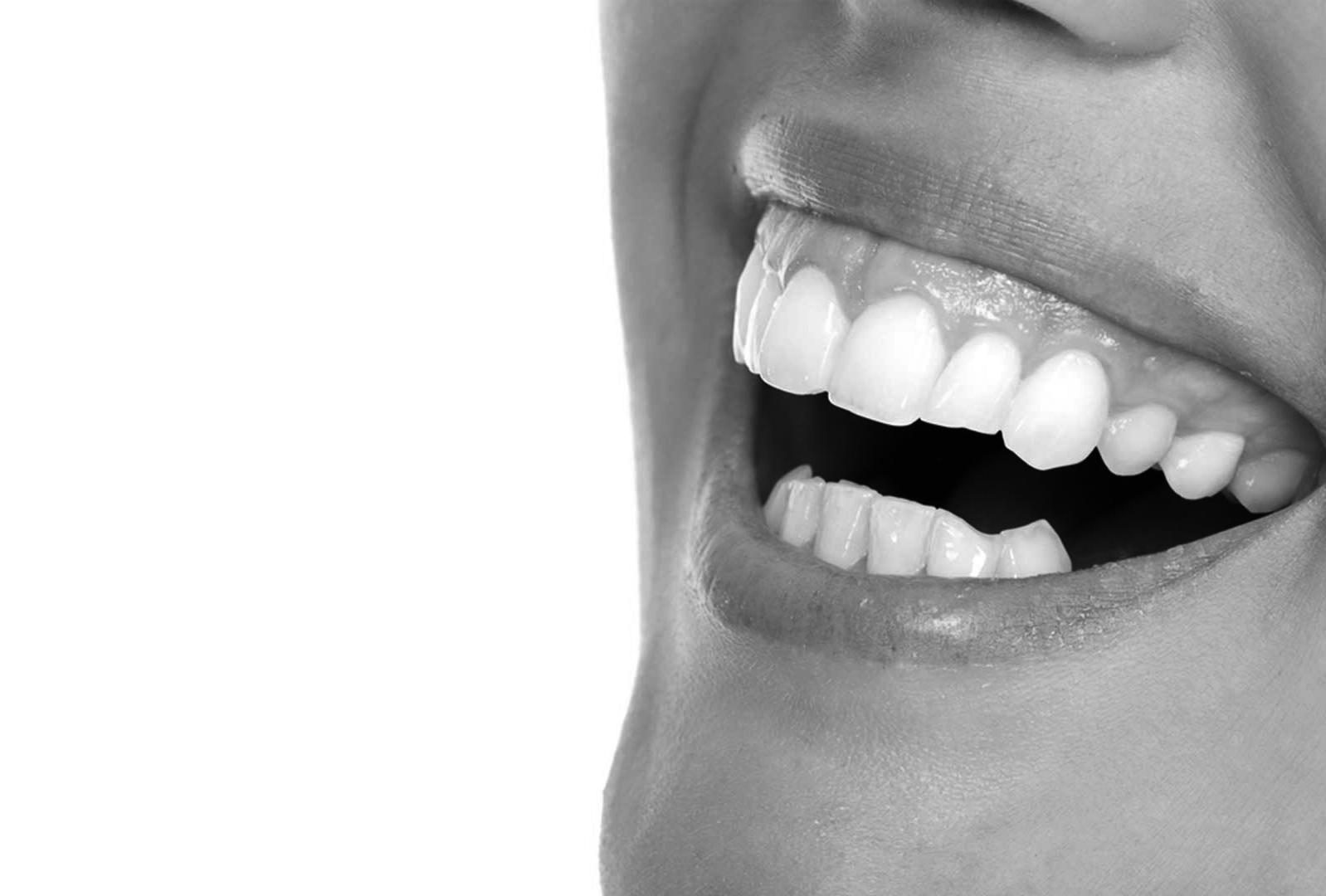 antes despues sonrisa gingival 1